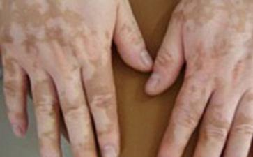 初期白癜风的症状是什么